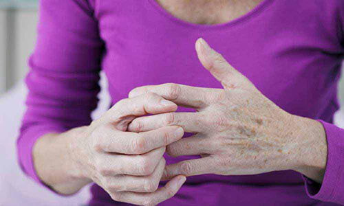 How to Live with Rheumatoid Arthritis