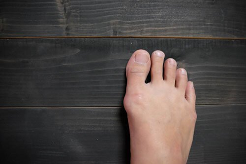 5 Steps For Minimizing Your Risk Of Gout